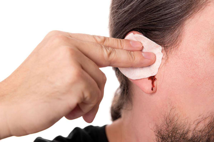 Ngoáy tai bị chảy máu có sao không? Hướng dẫn cách xử trí từ bác sĩ
